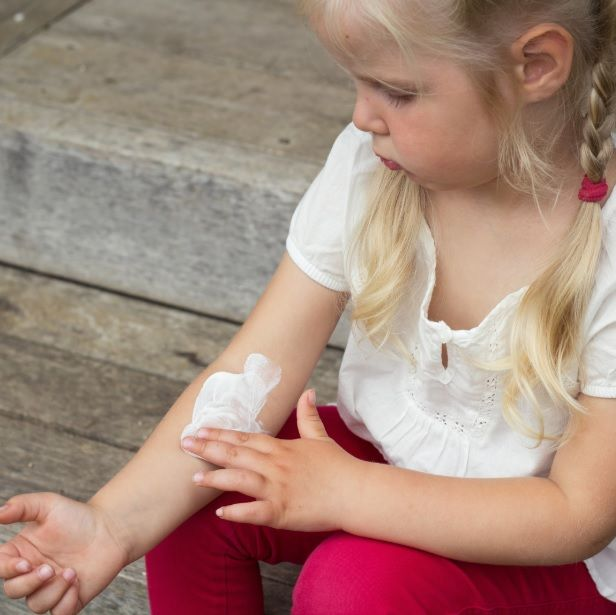 home remedies for kids eczema