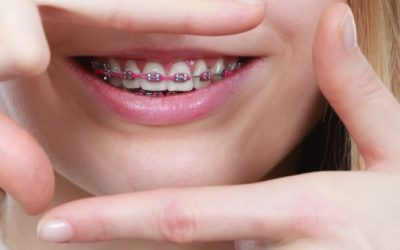 Signs Your Child May Need Braces
