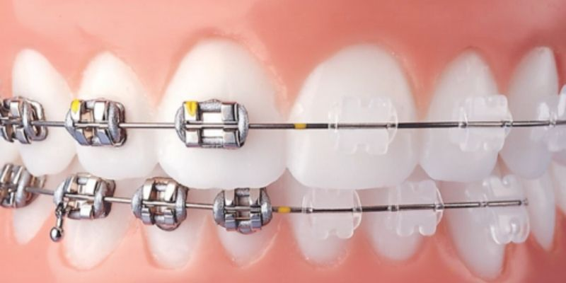 difference between ceramic and metal braces