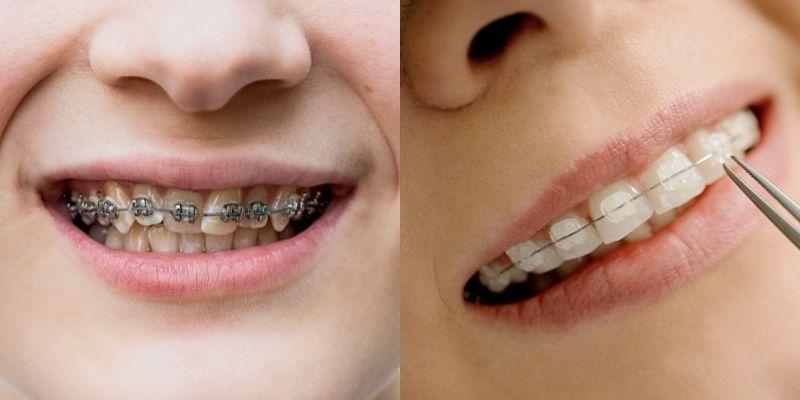 ceramic vs metal braces for kids