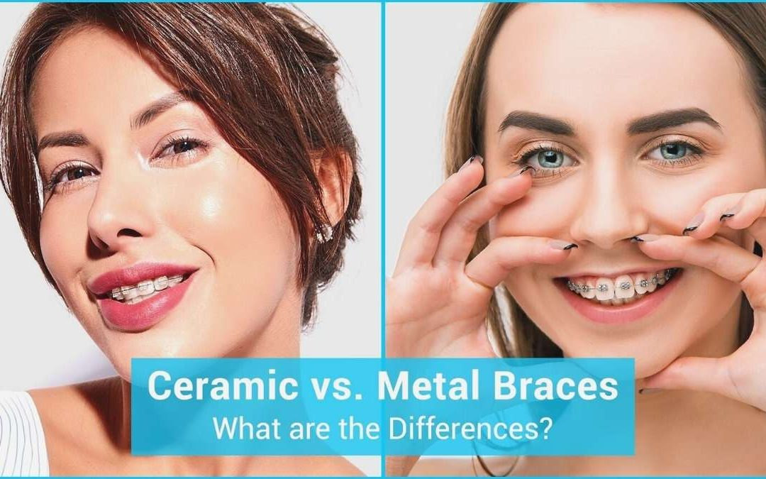 What is the difference between metal and ceramic braces