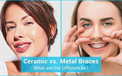Ceramic vs. Metal Braces: What are the Differences?