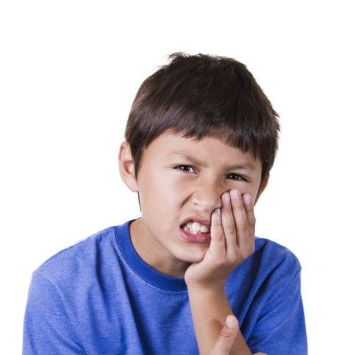 Wisdom Teeth Removal in children